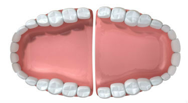 Dentures | Dr. Ly | Divine Dental Solutions | Dentist Elk Grove, CA
