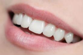 Dental Crowns | Dr. Ly | Divine Dental Solutions | Dentist Elk Grove, CA