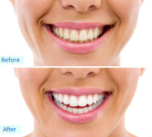 Teeth Whitening | Divine Dental Solutions | Sacramento, CA Dentist
