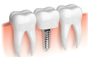 Dental Implants | Divine Dental Solutions | Dentist Fresno, CA