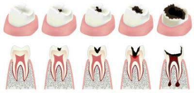 Root Canal Therapy | Dr. Ly | Divine Dental Solutions | Dentist Elk Grove, CA